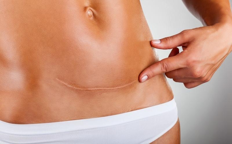 MiniAbdominoplastia ¿Qué es y en qué consiste?