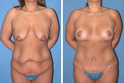 lipectomia-abdominal-abdominoplastia