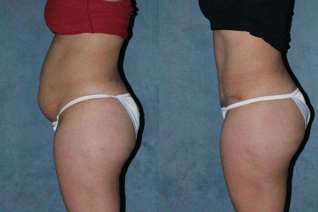 tummy-tuck-abdominoplastia