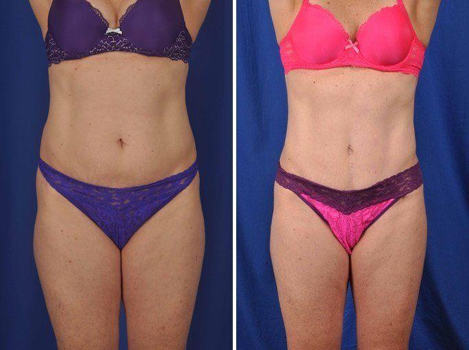 abdominoplastia-cirugia-imagenes