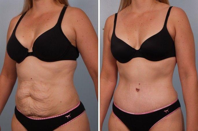 abdominoplastia-exceso-de-grasa