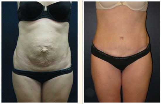 abdominoplastia-imagenes-cirugia