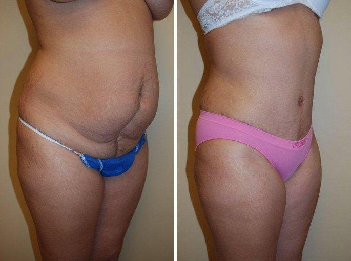 abdominoplastia-imagenes