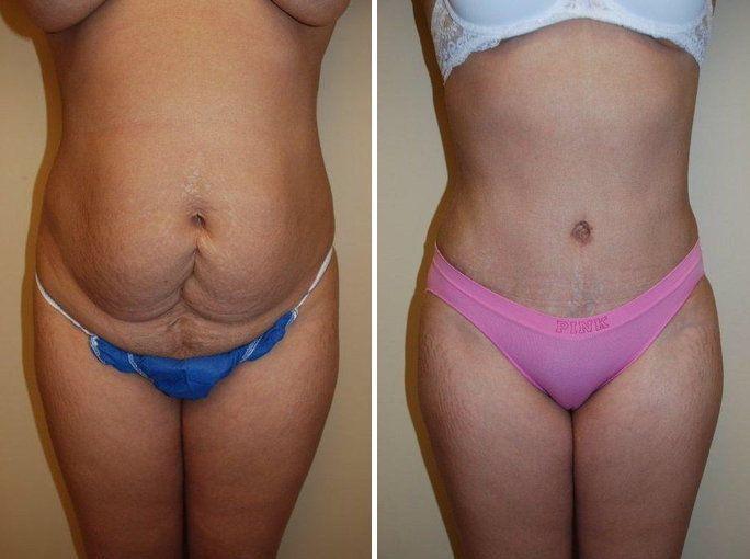 abdominoplastia-quitar-exceso-de-piel