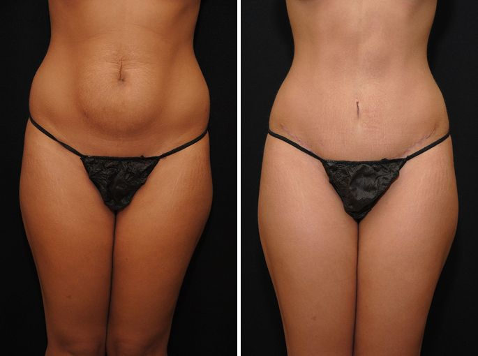 Abdominoplastia masculina antes y despues de adelgazar