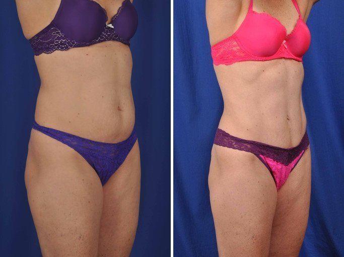cirugia-de-abdomen3