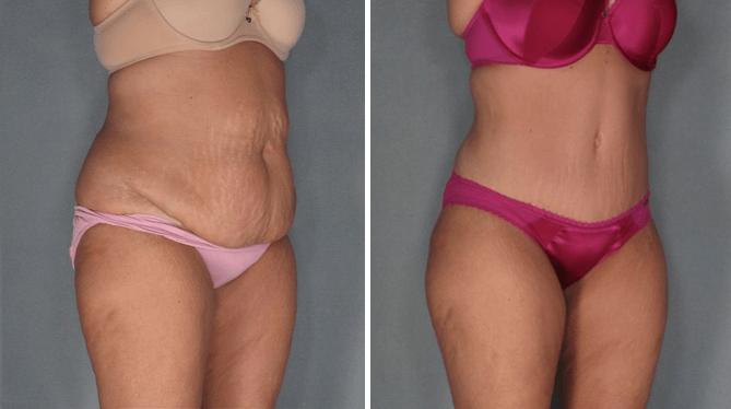cirugia-de-abdomen4