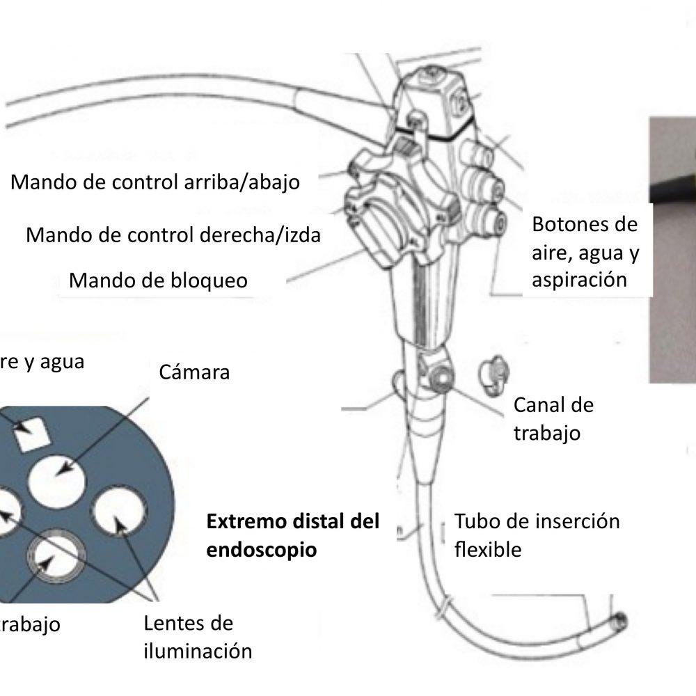 Abdominoplastia Endoscópica ¿Qué es y en qué consiste?