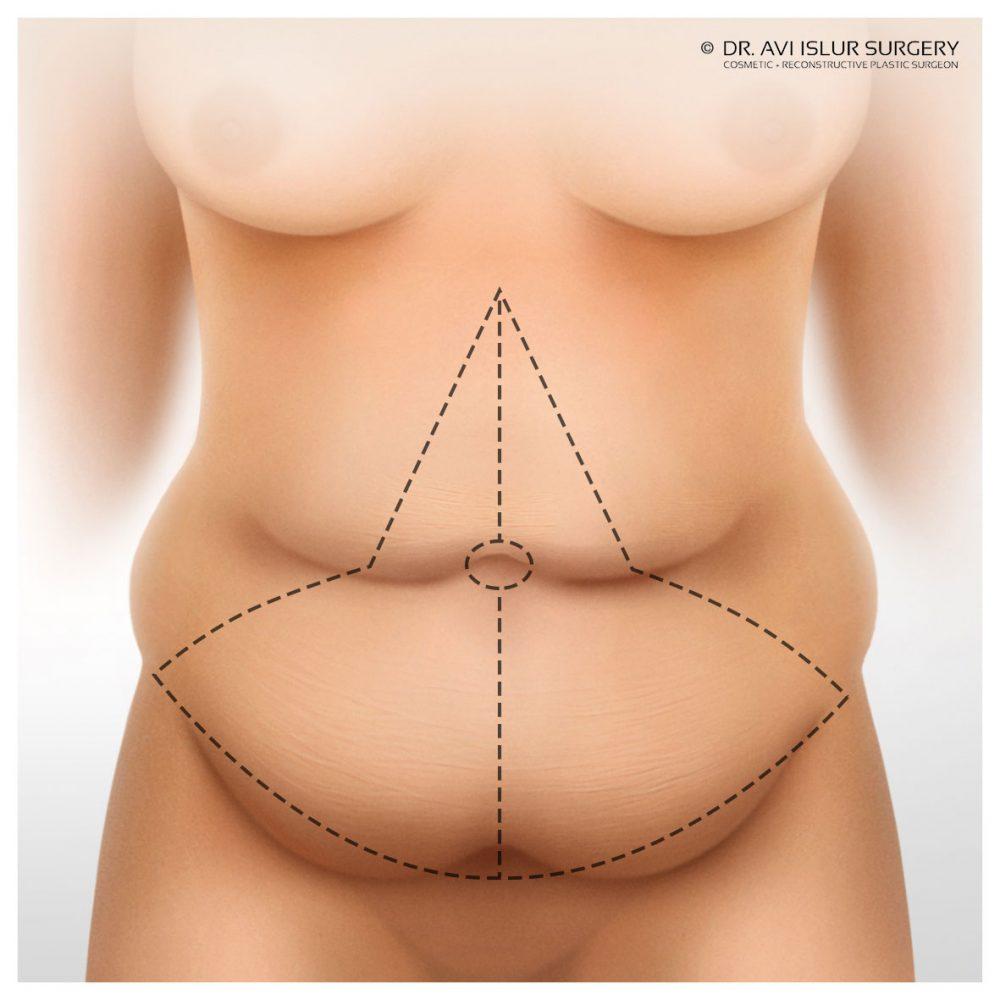 ¿Cuánto dolor se encuentra asociado a una abdominoplastia?
